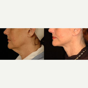 55-64 year old woman treated with Neck Lift before 3658780
