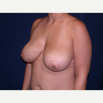 35-44 year old woman treated with Breast Reduction before 3344941