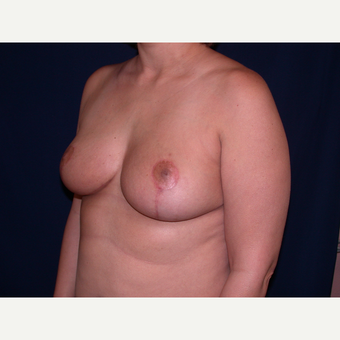 35-44 year old woman treated with Breast Reduction after 3344941