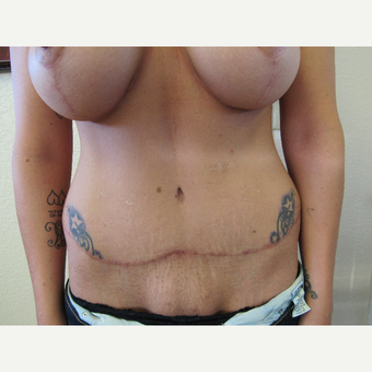 35-44 year old woman treated with Tummy Tuck after 3412825
