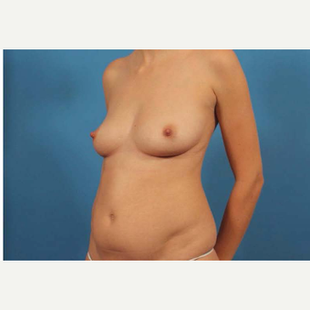 25-34 year old woman treated with Mini Tummy Tuck before 3787160