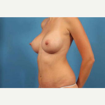 25-34 year old woman treated with Mini Tummy Tuck after 3787160