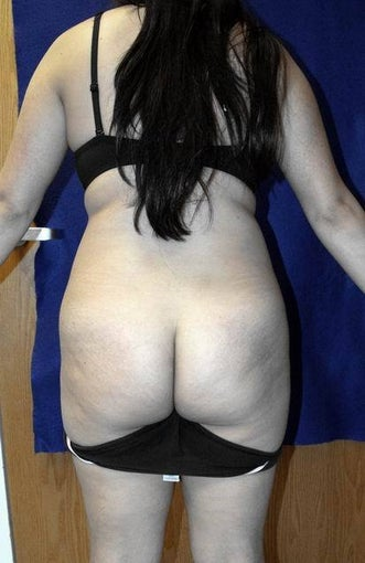 Buttock (Gluteal) Augmentation via liposuction and fat transfer