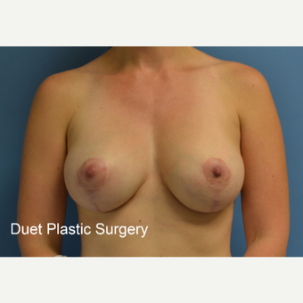 35-44 year old woman treated with Breast Lift with Implants after 3368569