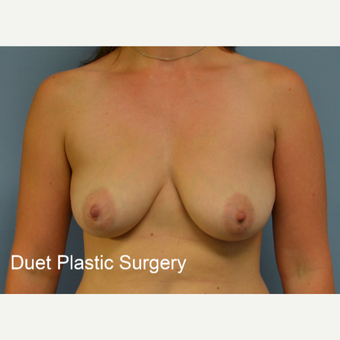 35-44 year old woman treated with Breast Lift with Implants before 3368569