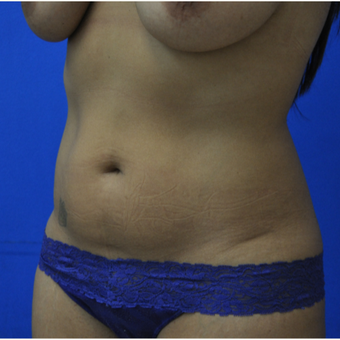 35- year old woman treated with Vaser Liposuction before 3482823