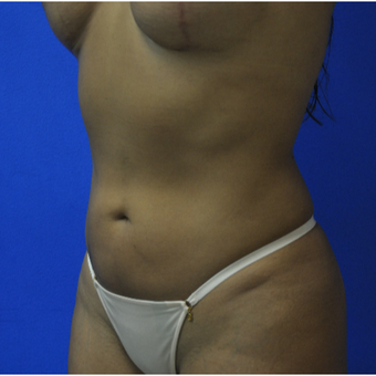 35- year old woman treated with Vaser Liposuction after 3482823