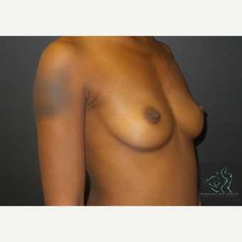 25-34 year old woman treated with Mentor Breast Implants before 3725936