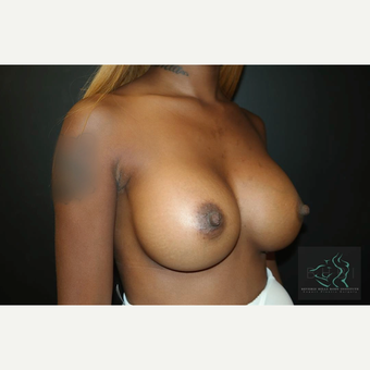 25-34 year old woman treated with Mentor Breast Implants after 3725936