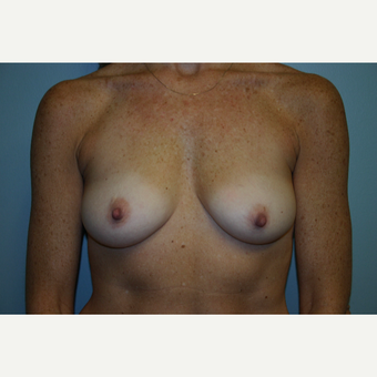 45-54 year old woman treated with Breast Augmentation before 3054273