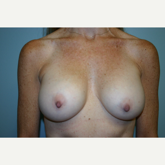 45-54 year old woman treated with Breast Augmentation after 3054273