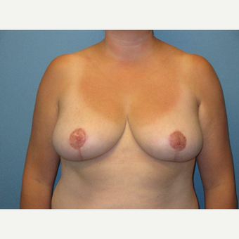 35-44 year old woman treated with Breast Reduction after 3724589