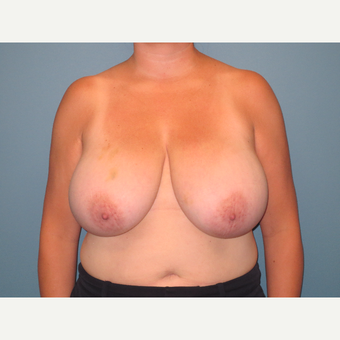 35-44 year old woman treated with Breast Reduction before 3724589