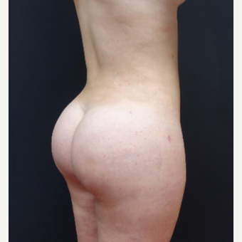 18-24 year old woman treated with Brazilian Butt Lift after 3315461