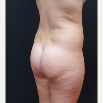 18-24 year old woman treated with Brazilian Butt Lift before 3315461