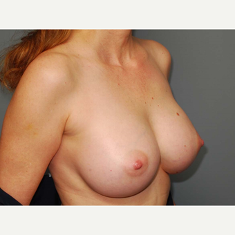 49 y/o Inframammary Sub Muscular Breast Augmentation after 3066059