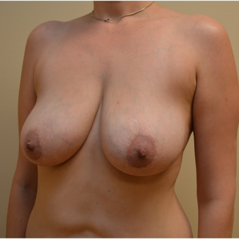 Embrace Scar Therapy used to minimize scarring from Breast lift with implants before 3293634