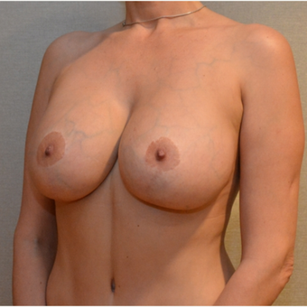 Embrace Scar Therapy used to minimize scarring from Breast lift with implants after 3293634
