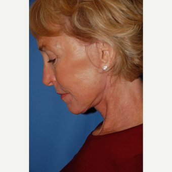 55-64 year old woman treated with Facelift after 3610815