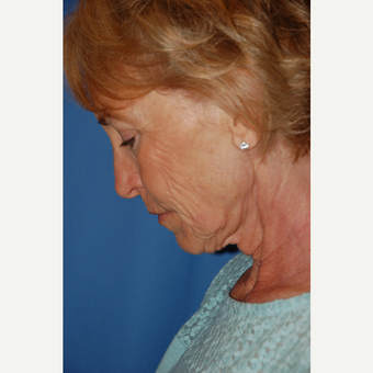 55-64 year old woman treated with Facelift before 3610815
