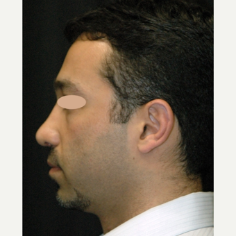 42 year old man treated with Rhinoplasty after 3783289