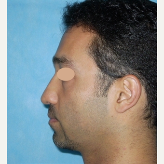 42 year old man treated with Rhinoplasty before 3783289