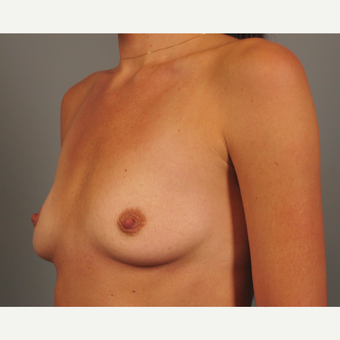 25-34 year old woman treated with Breast Implants before 3258365