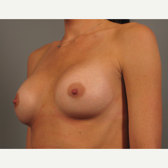 25-34 year old woman treated with Breast Implants after 3258365