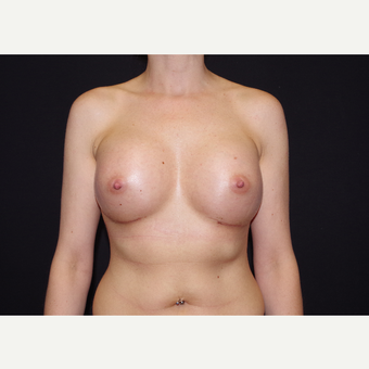 25-34 year old woman treated with Breast Implants after 3441714