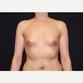25-34 year old woman treated with Breast Implants before 3441714