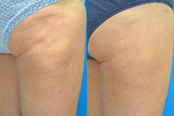 60 Year Old Female Treated for Cellulite before 657320