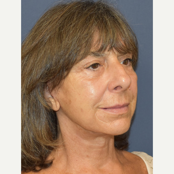 65-74 year old woman treated with Facelift after 3213964