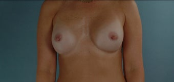 38 Year Old Woman Submuscular Breast Implants after 1000733