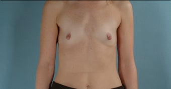 38 Year Old Woman Submuscular Breast Implants before 1000733