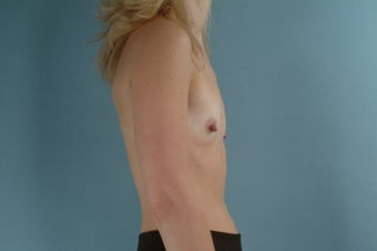 38 Year Old Woman Submuscular Breast Implants 1000733