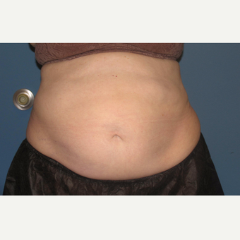25-34 year old woman treated with CoolSculpting after 3657149