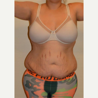 25-34 year old woman treated with Tummy Tuck before 3658508