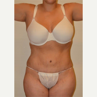 25-34 year old woman treated with Tummy Tuck after 3658508