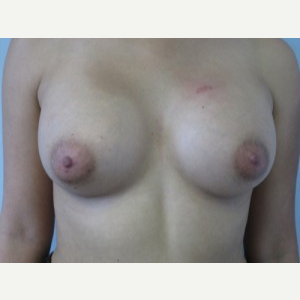 Breast Augmentation after 3054916