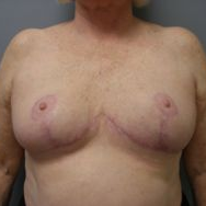 65-74 year old woman treated with Breast Reduction after 3280655
