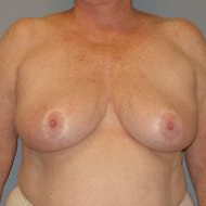 65-74 year old woman treated with Breast Reduction before 3280655