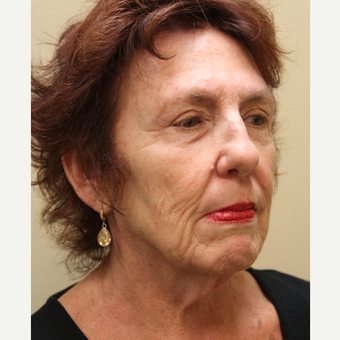 65-74 year old woman treated with Modified Facelift before 3664649