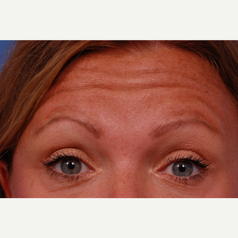 35-44 year old woman treated with Botox in the glabella, crows feet, and forehead areas. before 3180533