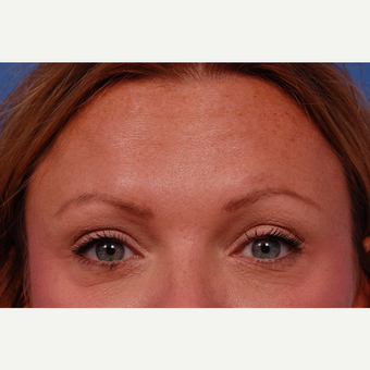 35-44 year old woman treated with Botox in the glabella, crows feet, and forehead areas. after 3180533