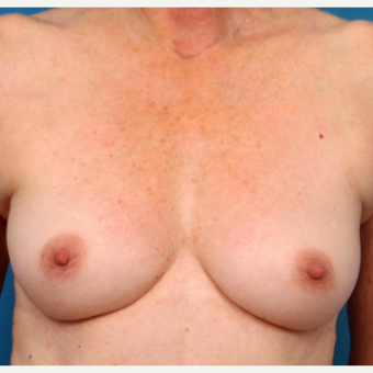 55-64 year old woman treated with Fat Transfer before 3219112
