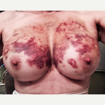 55-64 year old woman treated with Fat Transfer after 3219112