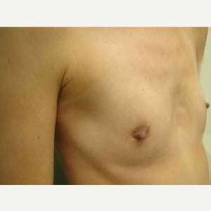 45-54 year old woman treated with Breast Augmentation before 3168187