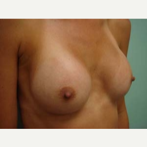 45-54 year old woman treated with Breast Augmentation after 3168187
