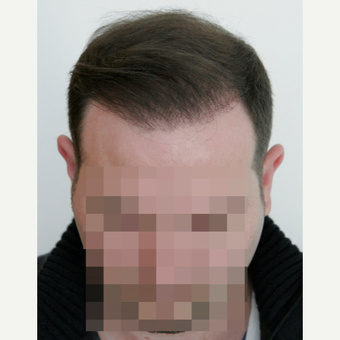 25-34 year old man treated with FUE Hair Transplant after 3258309