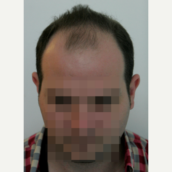 25-34 year old man treated with FUE Hair Transplant before 3258309